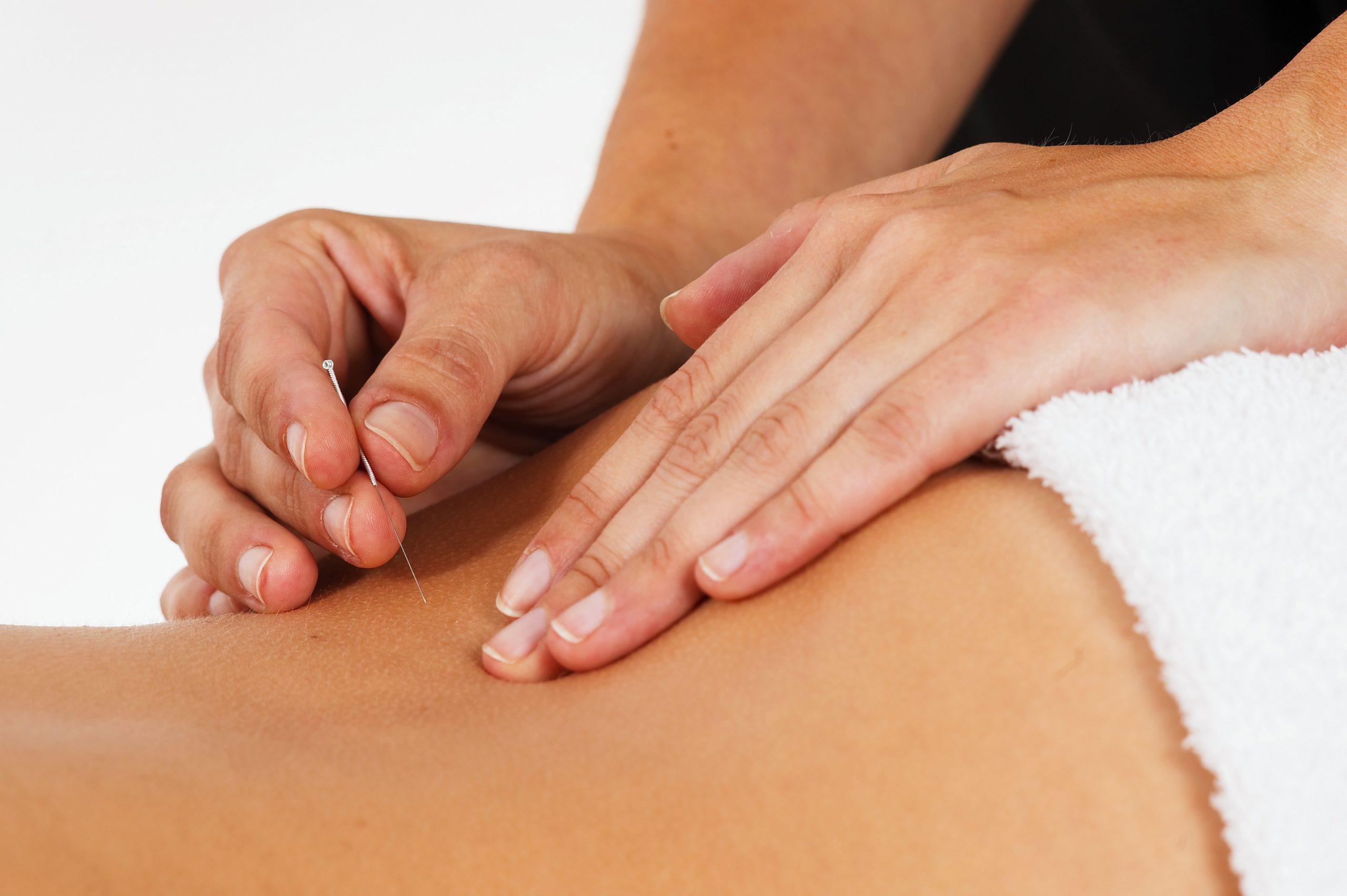 Akupunktur i Fredericia
